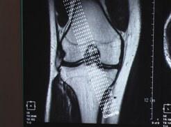 膝関節MRI画像