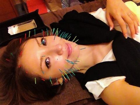 美容鍼中の美香
