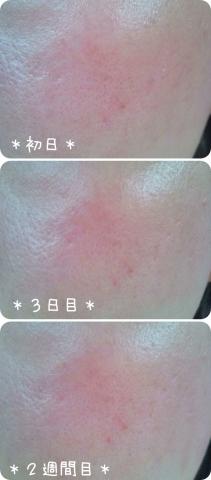 コーセー 米肌 肌潤改善エッセンス