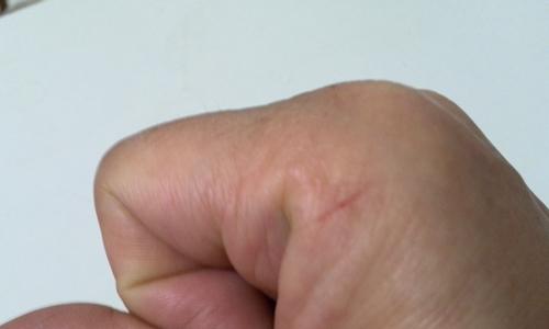 ピンクレディメドレー&指の怪我にはご注意 _5