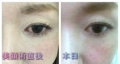 美顔術後2