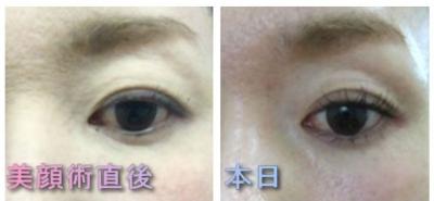 美顔術後の目の大きさ