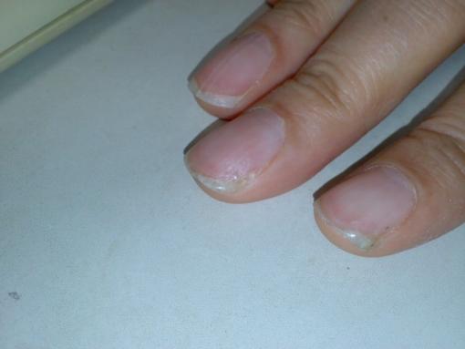 補強した爪