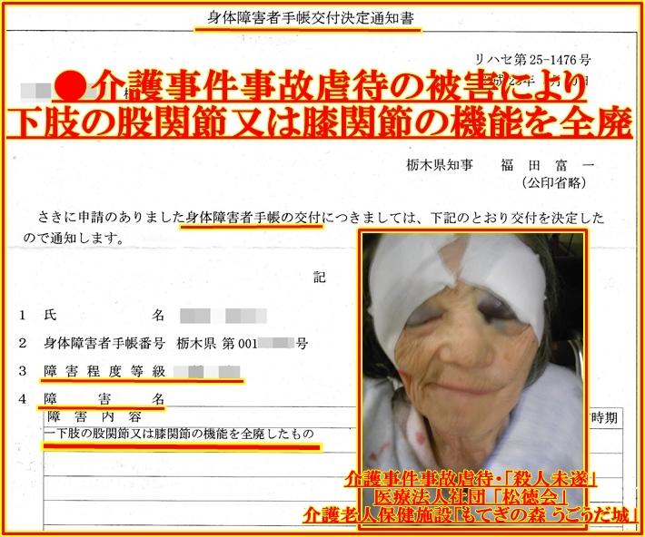 医療法人社団 「松徳会」 介護老人保健施設「もてぎの森 うごうだ城」5