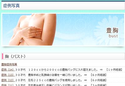 blog 160204