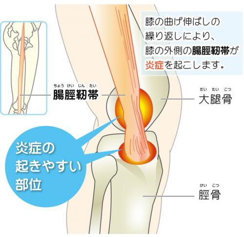 【腸脛靱帯炎】であるような・3