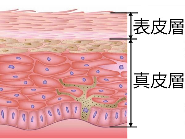 表皮層と真皮層 ニキビ跡